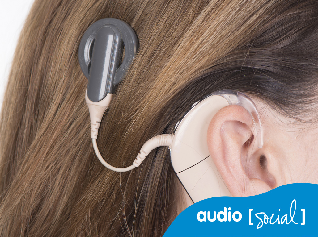 Audiologia: l'implant coclear